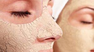 Yaş Maya Maskesi Nedir ? Kullanım Alanları ve Tarifleri